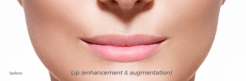 The Smile Workx - Anti Wrinkle Injections Dermal Fillers Before