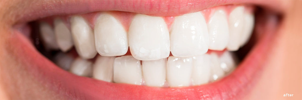 The Smile Workx - Dental Services - Cosmetic Dentistry Teeth Whitening After