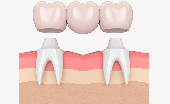The Smile Workx - Dental Crowns and Bridges