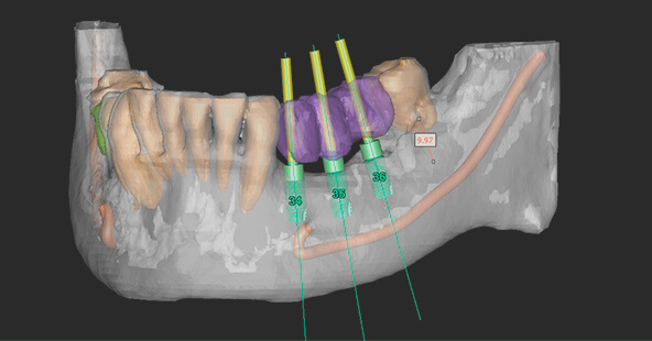 The Smile Workx - Dental Implants Digital Guided