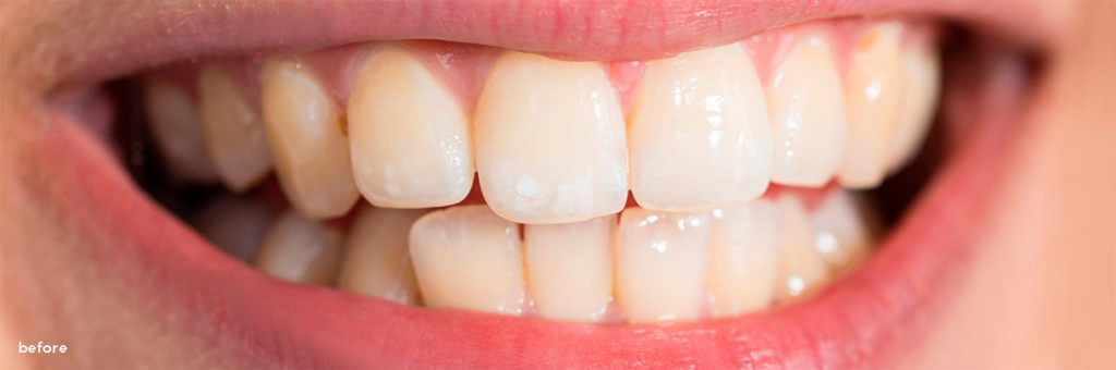 The Smile Workx - Dental Services - Cosmetic Dentistry Teeth Whitening Before