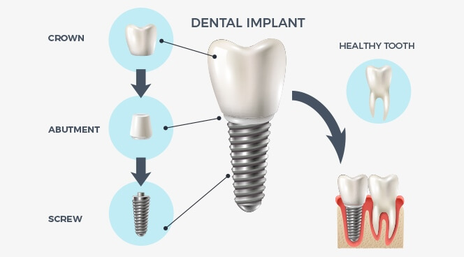 The Smile Workx - Dental Services - Dental Implant Process