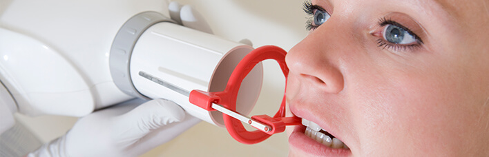 The Smile Workx - Dental Services - X-rays and Oral Examinations