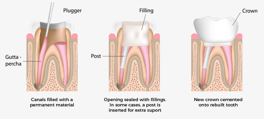 The Smile Workx - General Dentistry Root Canal Treatment 2