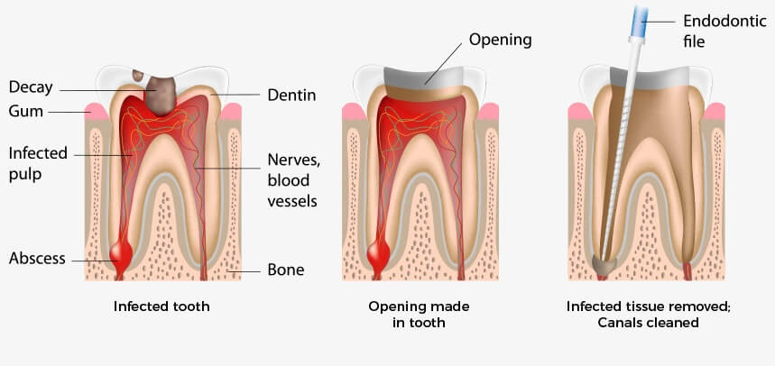 The Smile Workx - General Dentistry Root Canal Treatment